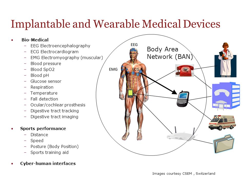Implantable and Wearable Medical Devices Bio-Medical –EEG Electroencephalography –ECG Electrocardiogram –EMG Electromyography (muscular) –Blood pressu