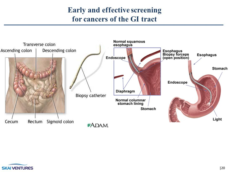 |20 Early and effective screening for cancers of the GI tract