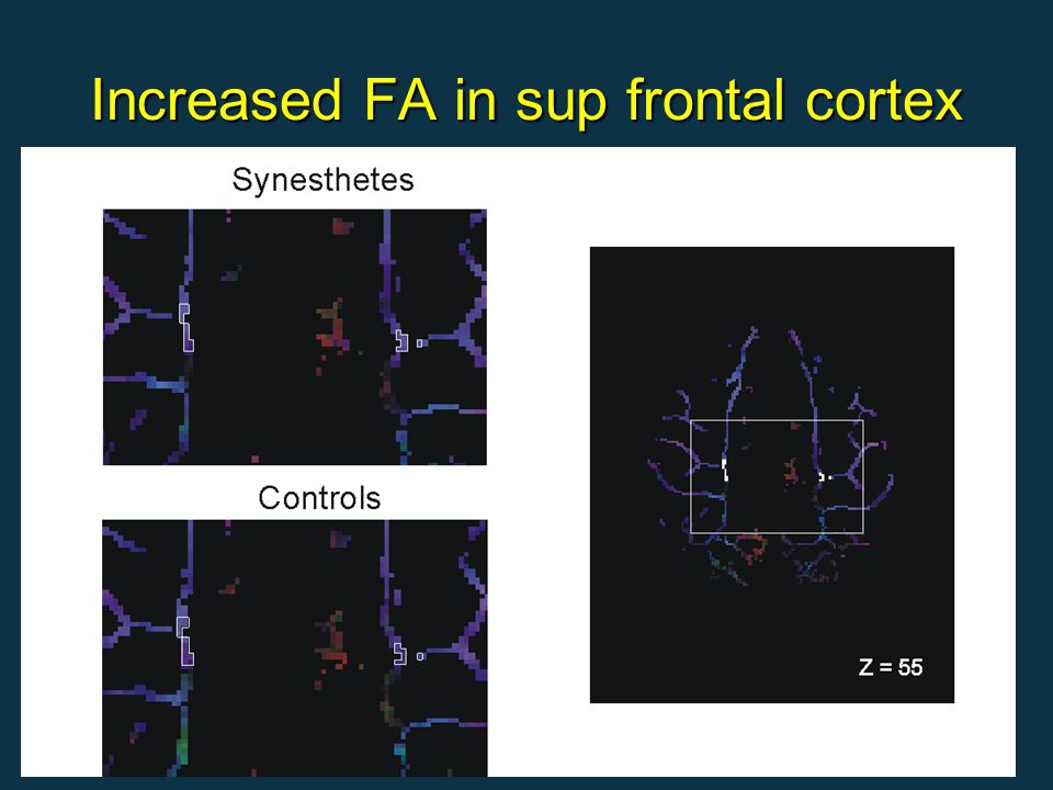 Increased FA in sup frontal cortex