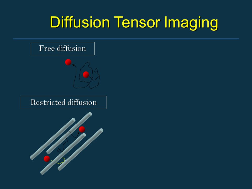 Diffusion Tensor Imaging Free diffusion Restricted diffusion
