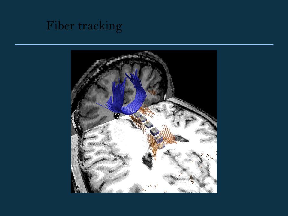 Fiber tracking