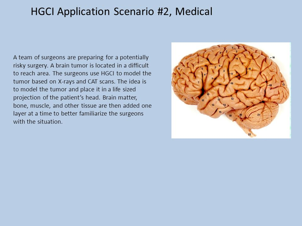 HGCI Application Scenario #2, Medical A team of surgeons are preparing for a potentially risky surgery.