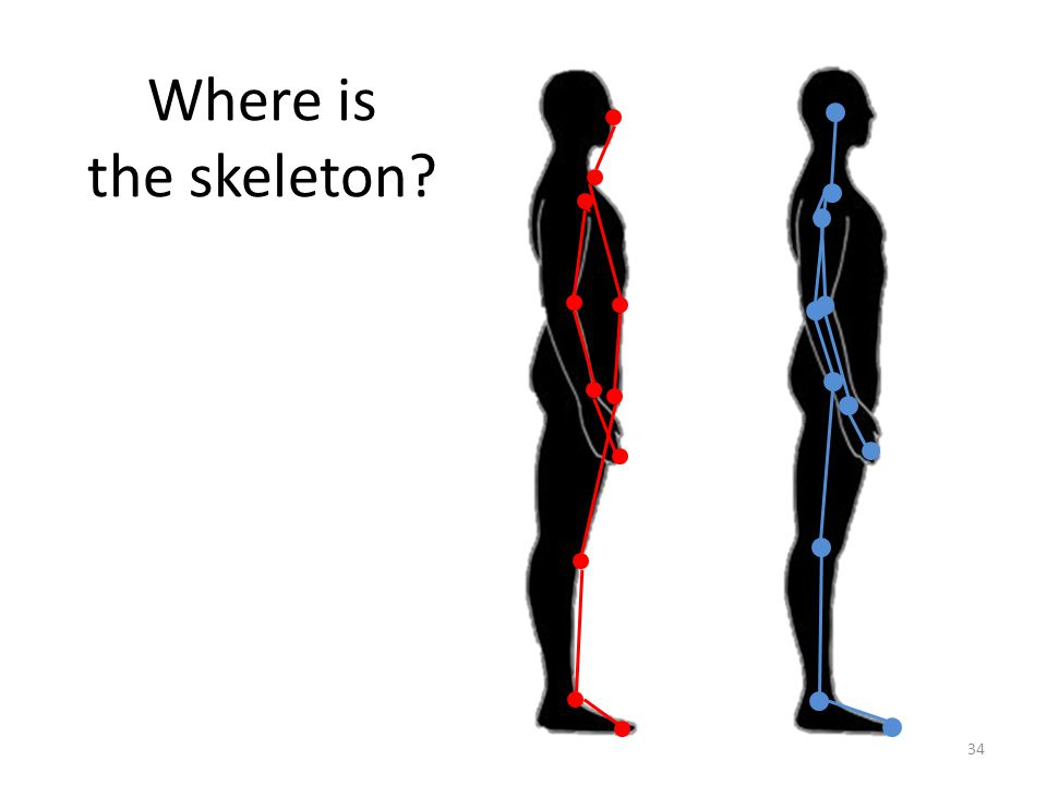 Where is the skeleton 34