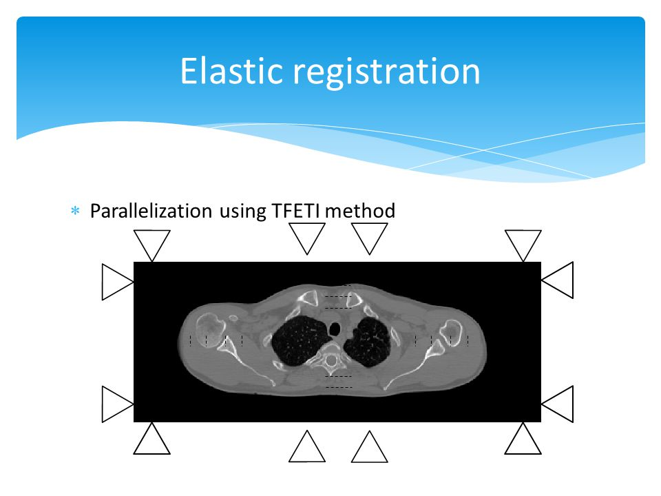  Parallelization using TFETI method Elastic registration