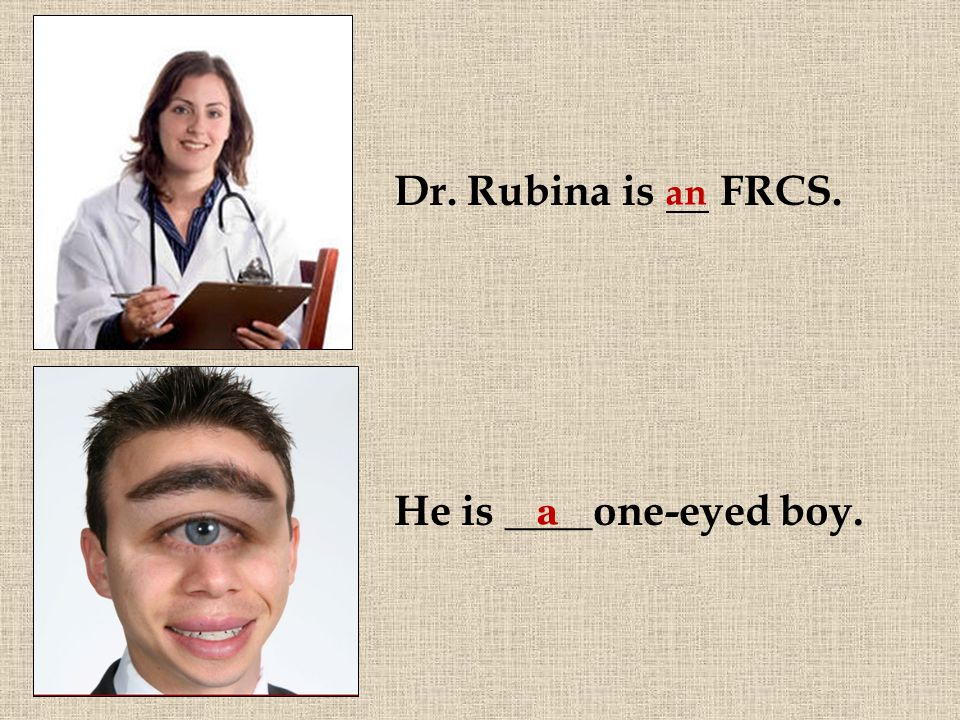He is ____one-eyed boy. a an Dr. Rubina is FRCS.