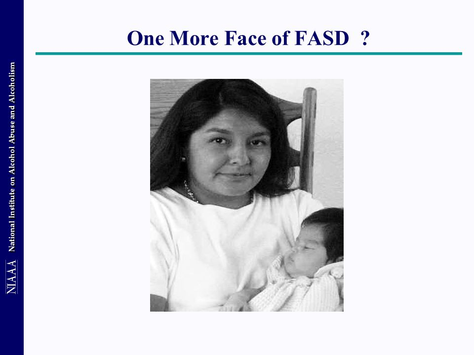 National Institute on Alcohol Abuse and Alcoholism One More Face of FASD