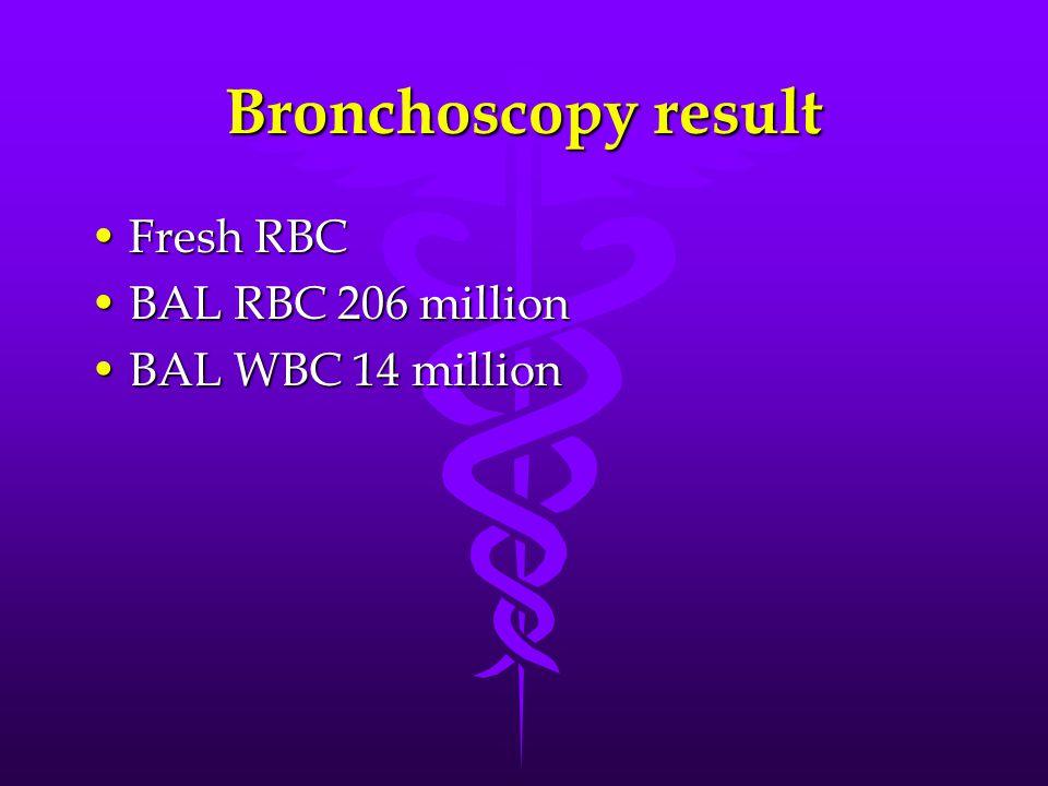Bronchoscopy result Fresh RBCFresh RBC BAL RBC 206 millionBAL RBC 206 million BAL WBC 14 millionBAL WBC 14 million