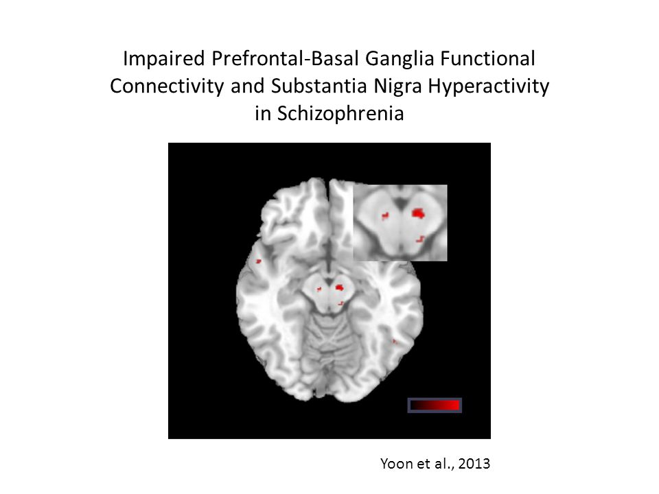 Impaired Prefrontal-Basal Ganglia Functional Connectivity and Substantia Nigra Hyperactivity in Schizophrenia Yoon et al., 2013