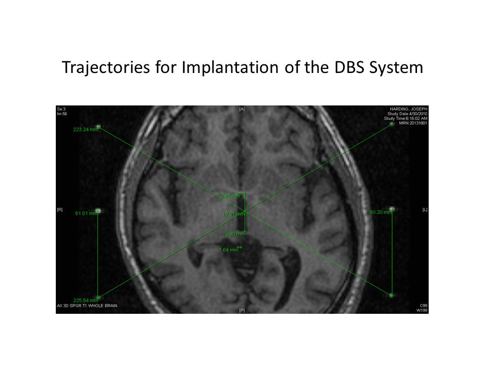 Trajectories for Implantation of the DBS System