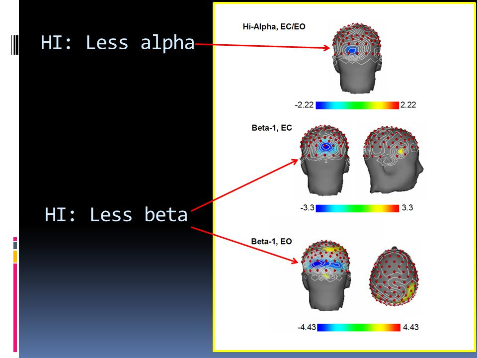 HI: Less alpha HI: Less beta