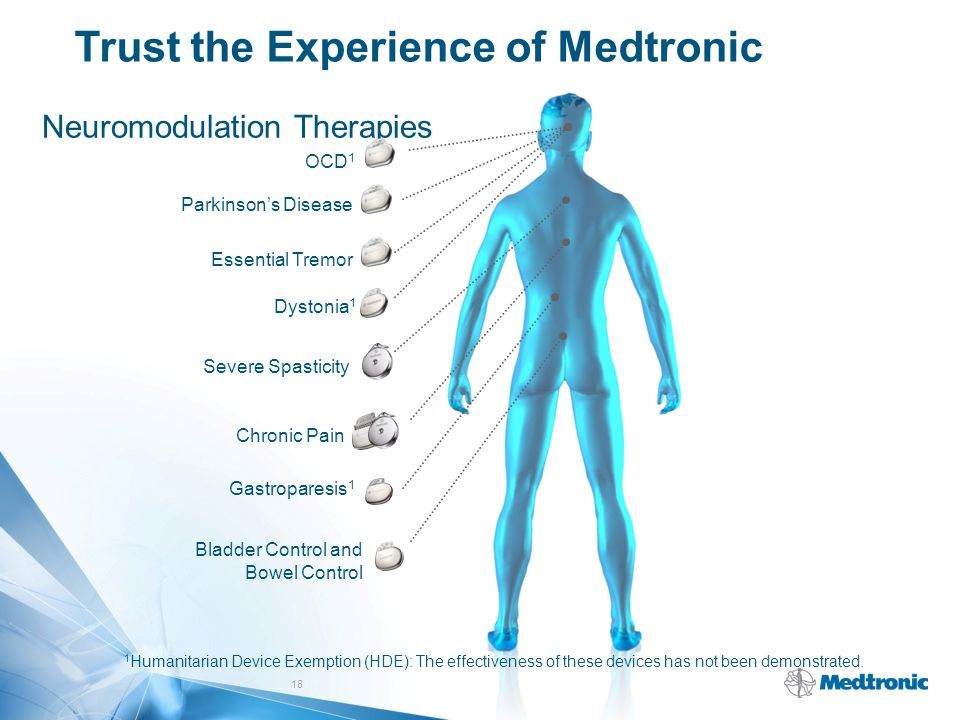 Trust the Experience of Medtronic Neuromodulation Therapies OCD 1 Parkinson's Disease Essential Tremor Chronic Pain Gastroparesis 1 Bladder Control an