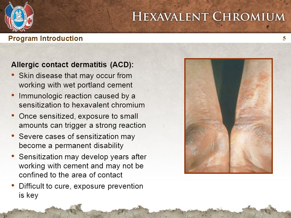 5 5 Program Introduction Allergic contact dermatitis (ACD): Skin disease that may occur from working with wet portland cement Immunologic reaction caused by a sensitization to hexavalent chromium Once sensitized, exposure to small amounts can trigger a strong reaction Severe cases of sensitization may become a permanent disability Sensitization may develop years after working with cement and may not be confined to the area of contact Difficult to cure, exposure prevention is key