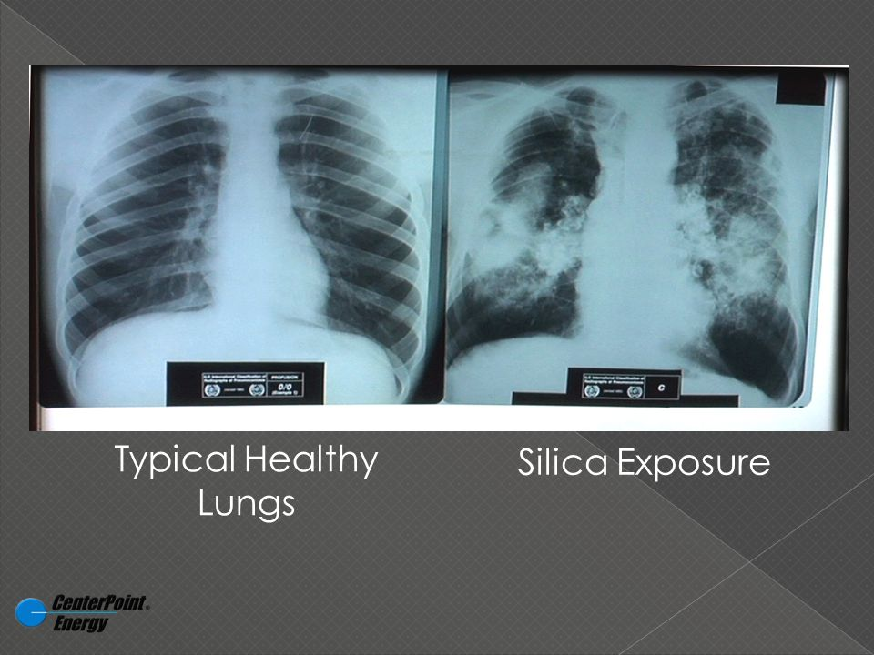 Typical Healthy Lungs Silica Exposure