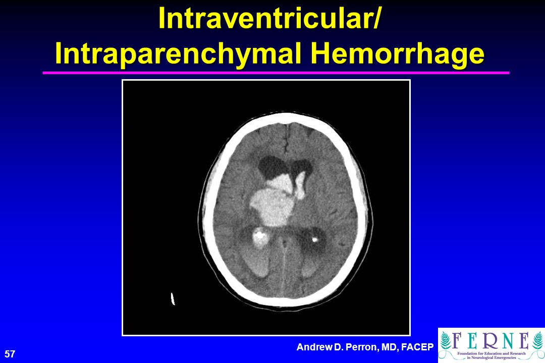 Andrew D. Perron, MD, FACEP 57 Intraventricular/ Intraparenchymal Hemorrhage