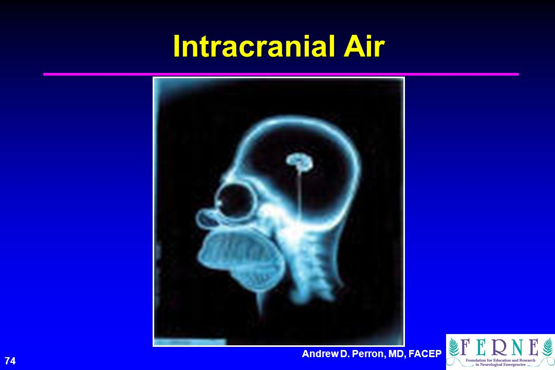 Andrew D. Perron, MD, FACEP 74 Intracranial Air