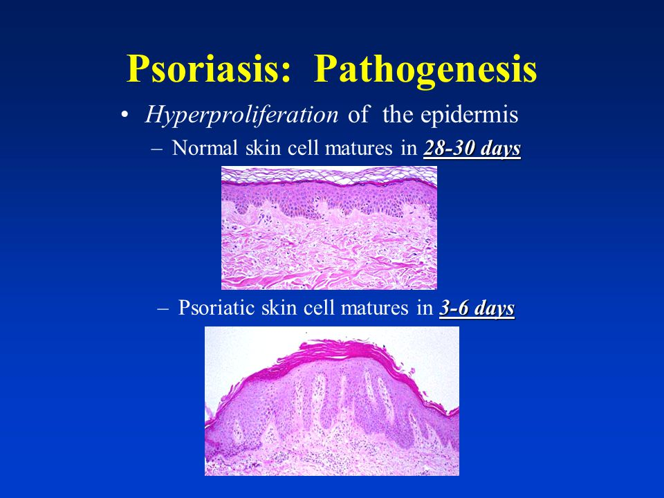 Psoriasis: Morphology: Circumscribed, thickened, plaques with secondary erythema and thick, silvery scales