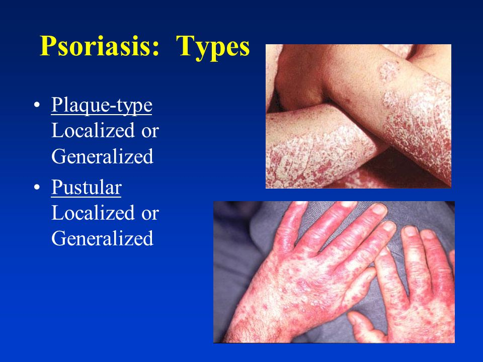 Psoriasis: Pathogenesis Hyperproliferation of the epidermis –N–Normal skin cell matures in 2 22 28-30 days –P–Psoriatic skin cell matures in 3 33 3-6 days