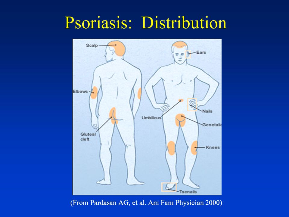 Psoriasis Arthritis associated (5-7%)