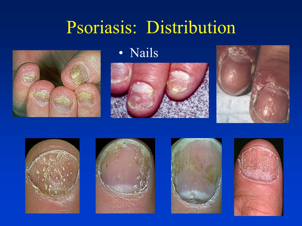Psoriasis: Distribution Extensor