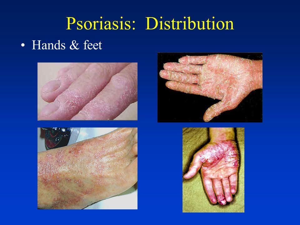 Psoriasis: Distribution Genitalia