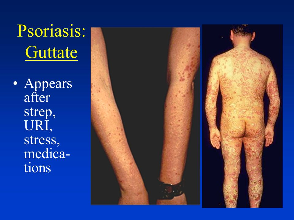 Psoriasis: Distribution Guttate-small red dots (Gutta = drops) Appears suddenly after a strep, URI, other infection, stress, medications