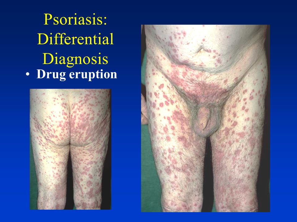 Psoriasis: Diagnosis Early on, may look like other diseases Bx may be necessary