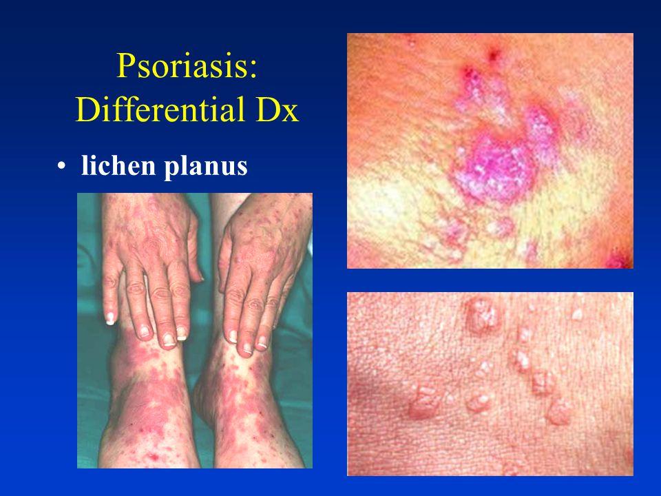 Psoriasis: Differential Diagnosis Eczema Neuro- dermatitis/ lichen simplex chronicus