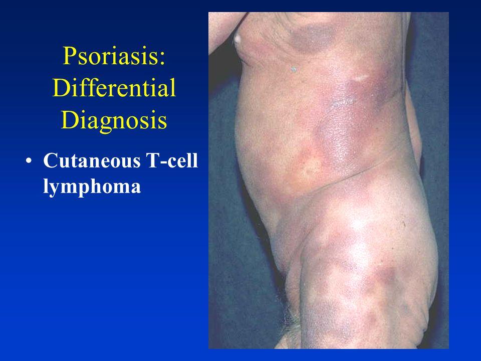 Psoriasis: Differential Diagnosis pityriasis rosea