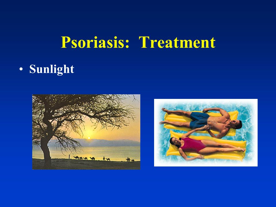 Psoriasis: Treatment <5% sunlight + topical tx 5-20% sunlight + topical tx +/- systemic >20%systemic tx +/- light therapy
