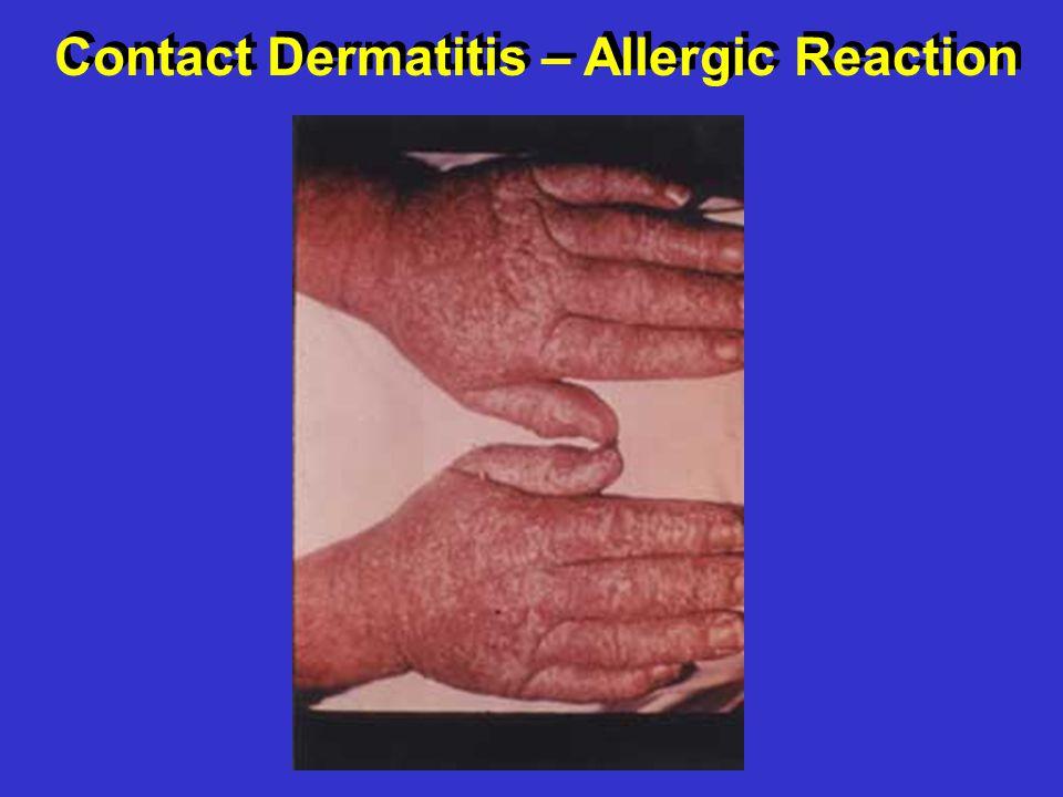 Contact Dermatitis – Allergic Reaction