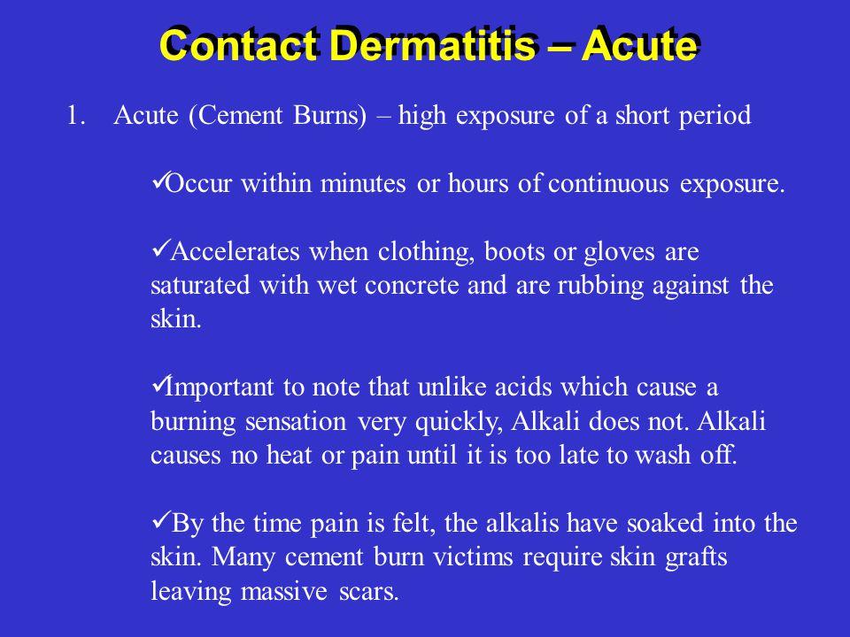 Contact Dermatitis – Acute 1.