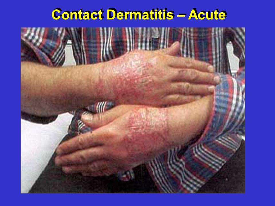Contact Dermatitis – Acute