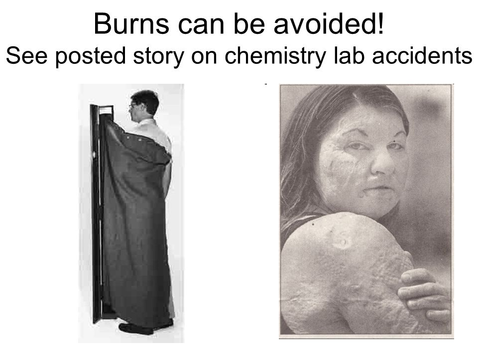 Burns can be avoided! See posted story on chemistry lab accidents