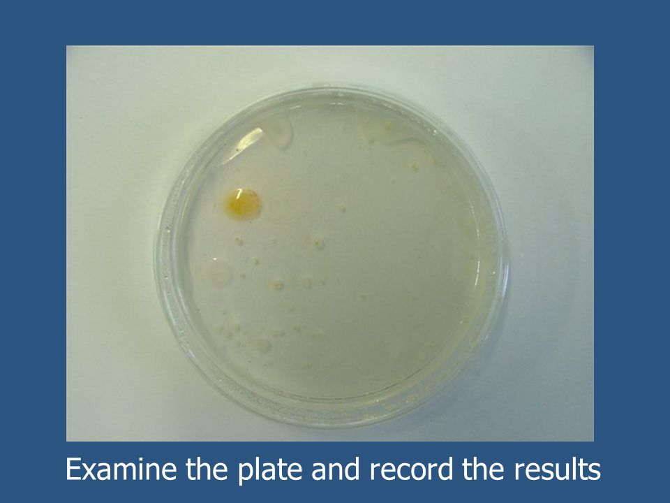 Examine the plate and record the results