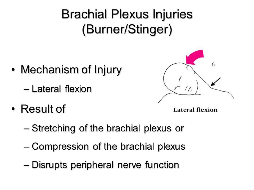 Brachial Plexus Injuries (Burner/Stinger) Mechanism of InjuryMechanism of Injury –Lateral flexion Result ofResult of –Stretching of the brachial plexus or –Compression of the brachial plexus –Disrupts peripheral nerve function