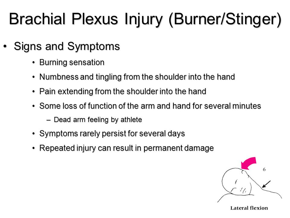 Brachial Plexus Injury (Burner/Stinger) Signs and SymptomsSigns and Symptoms Burning sensationBurning sensation Numbness and tingling from the shoulde