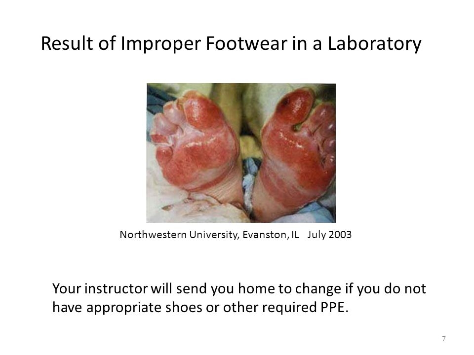 Result of Improper Footwear in a Laboratory Your instructor will send you home to change if you do not have appropriate shoes or other required PPE.