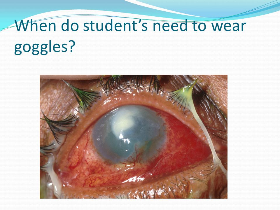 When do student's need to wear goggles