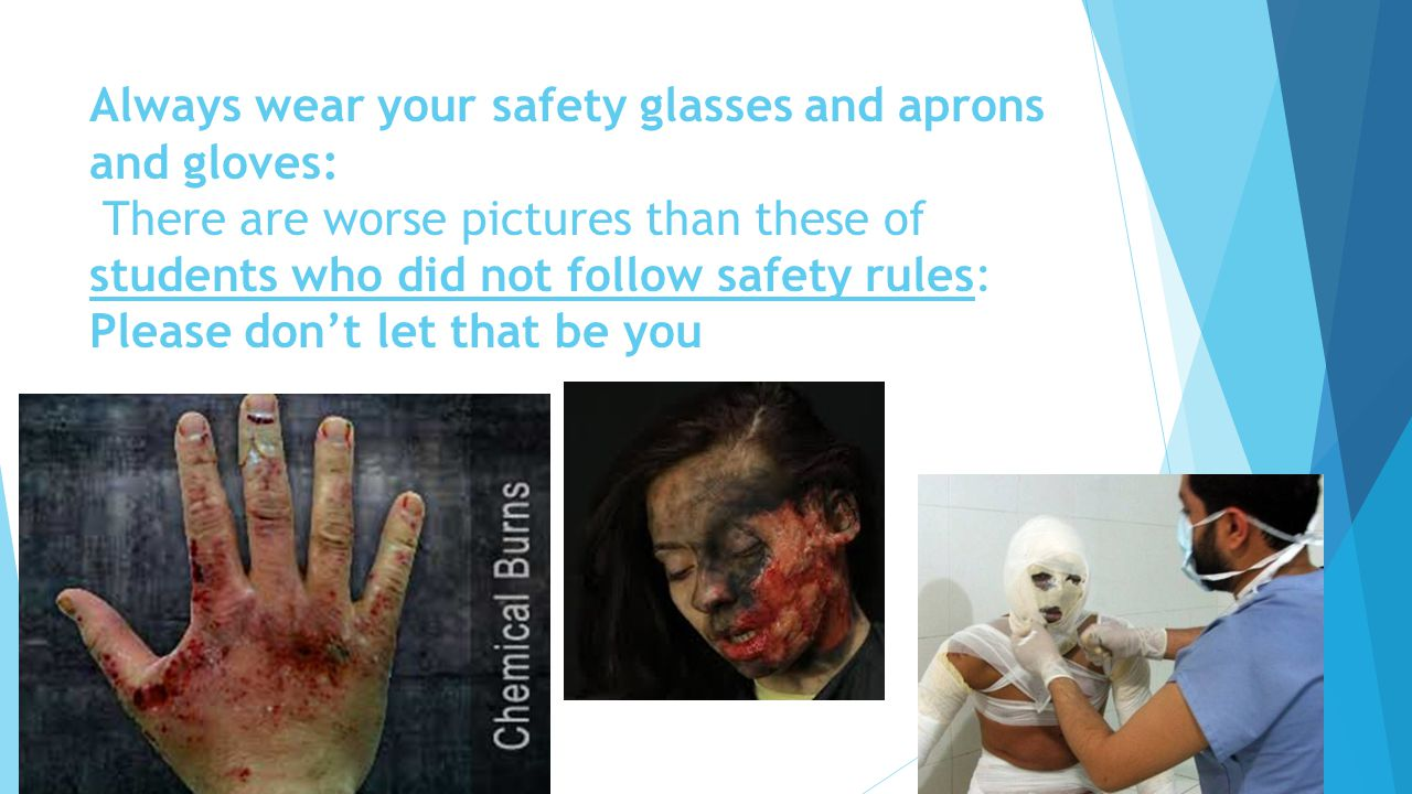 Always wear your safety glasses and aprons and gloves: There are worse pictures than these of students who did not follow safety rules: Please don't l