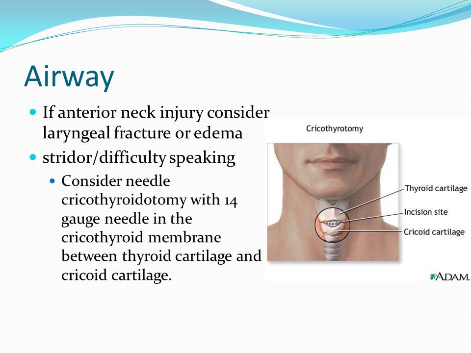 Airway If anterior neck injury consider laryngeal fracture or edema stridor/difficulty speaking Consider needle cricothyroidotomy with 14 gauge needle in the cricothyroid membrane between thyroid cartilage and cricoid cartilage.