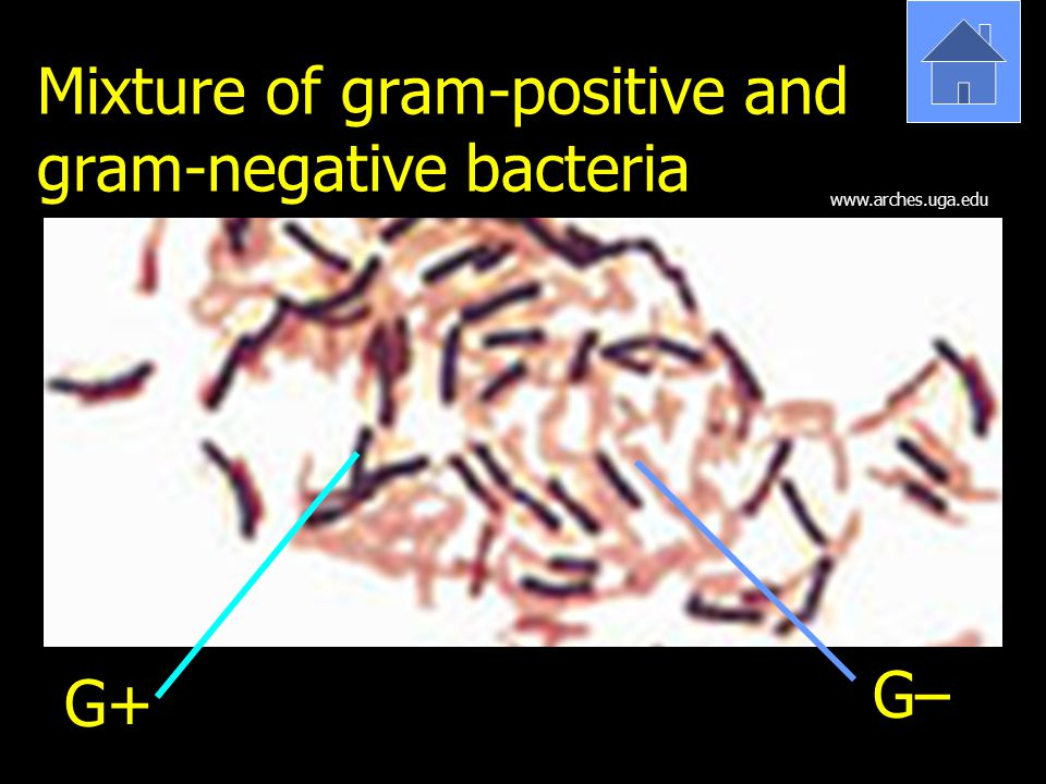 Mixture of gram-positive and gram-negative bacteria G+ G– www.arches.uga.edu