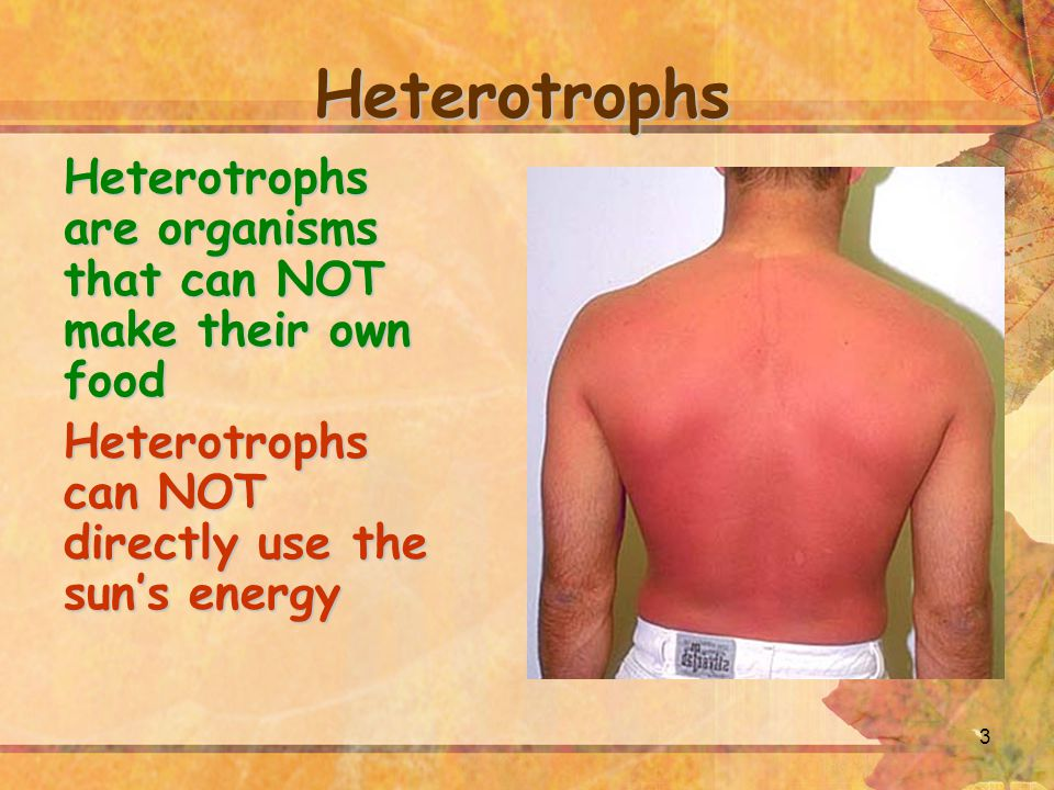 3 Heterotrophs Heterotrophs are organisms that can NOT make their own food Heterotrophs can NOT directly use the sun's energy