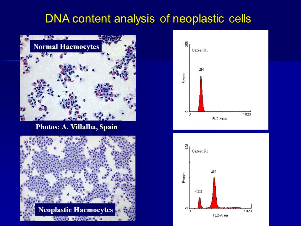 Normal Haemocytes Neoplastic Haemocytes Photos: A. Villalba, Spain DNA content analysis of neoplastic cells 4N <2N