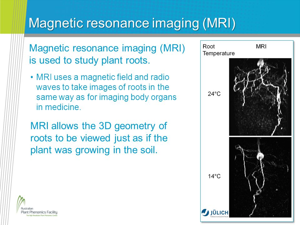 Magnetic resonance imaging (MRI) Magnetic resonance imaging (MRI) is used to study plant roots.