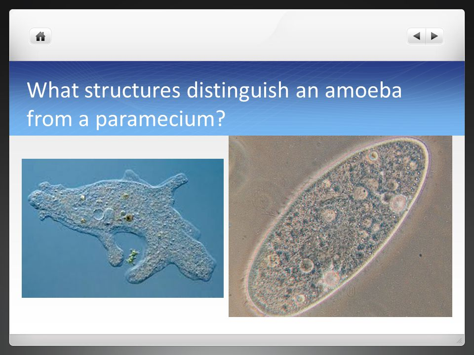 What structures distinguish an amoeba from a paramecium?
