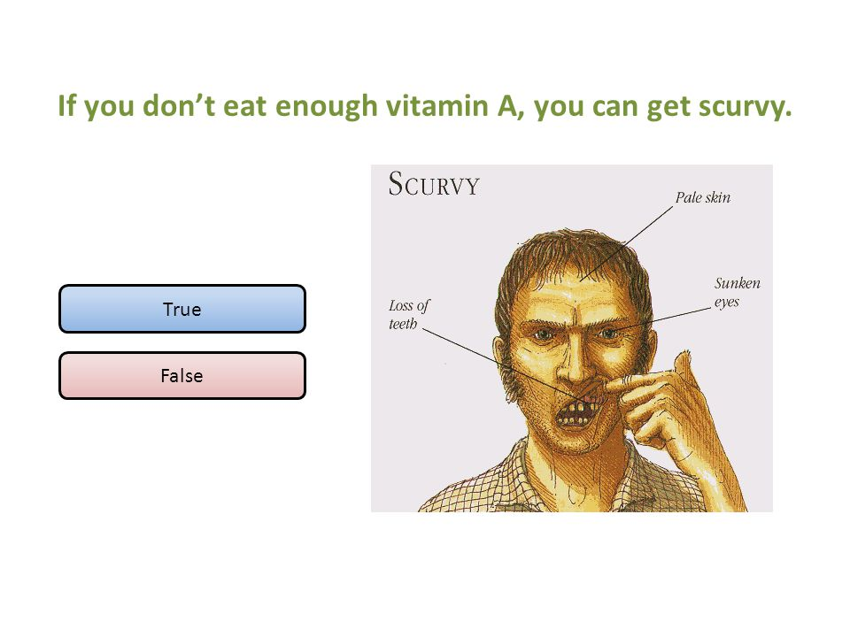 If you don't eat enough vitamin A, you can get scurvy. True False