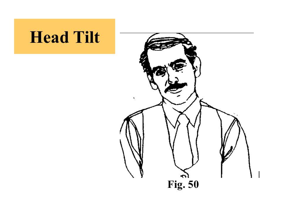Head Tilt Fig. 50