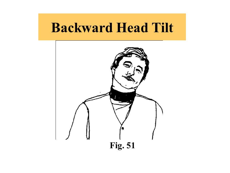Backward Head Tilt Fig. 51