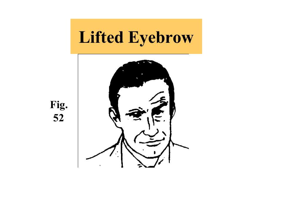 Lifted Eyebrow Fig. 52