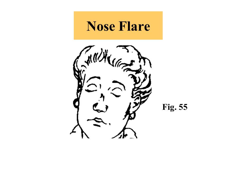Nose Flare Fig. 55